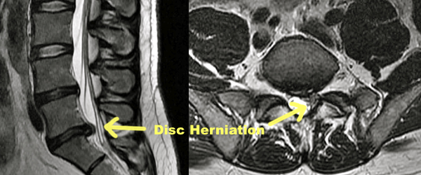 how to know if you have an erniated disc